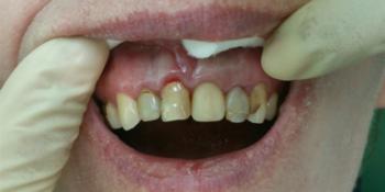 Композитная реставрация 6 фронтальных зубов верхней челюсти фото до лечения