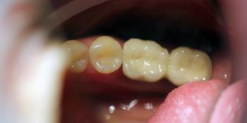 Восстановление зубного ряда с помощью имплантатов Ankylos и металлокерамических коронок фото после лечения