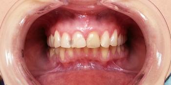 Реконструкция улыбки с помощью керамических виниров E-MAX стандарт фото до лечения
