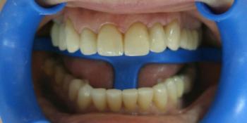 Преображение улыбки: 12 керамических виниров + 1 имплантат фото после лечения