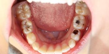 Лечение кариеса молочных зубов у маленького ребенка фото до лечения