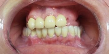 Протезирование зубов верхней челюсти при потере большого количества зубов фото до лечения