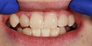 Лечение кариеса и реставрация передних зубов пломбировочным материалом фото после лечения