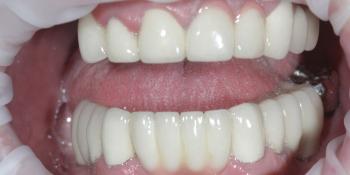 Полная эстетико-функциональная реабилитация зубов фото после лечения