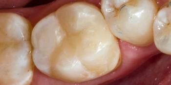 Результат реставрации жевательного зуба Filtek Ultimate фото после лечения