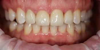 Эстетическая реставрация зубов винирами E.MAX фото после лечения