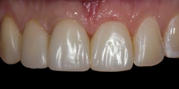 Жалобы на неудовлетворительную эстетику передних зубов фото после лечения