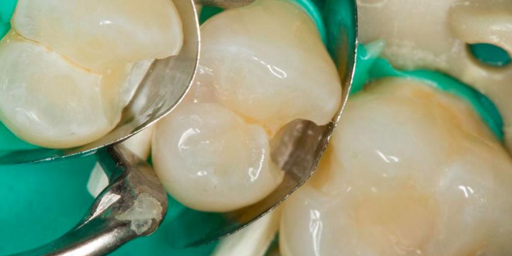 Лечение кариеса трех зубов подряд
