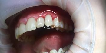 Восстановление зуба композитным материалом «Estelitе» и лечение кариеса фото после лечения
