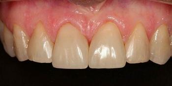 Закрытие диастемы (убрать промежуток между зубами) фото после лечения