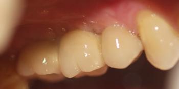 Восстановление двух зубов подряд: имплантация, синус-лифтинг, протезирование фото после лечения