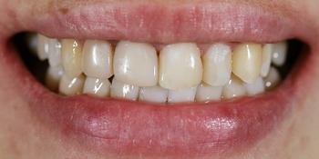 Эстетическая реставрация передних зубов с помощью виниров E.MAX фото до лечения
