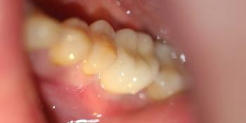 Удаление зуба с одномоментной установкой имплантата DENTIUM + протезирование фото после лечения