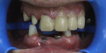 Полная эстетико-функциональная реабилитация зубов фото до лечения