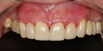 Прямая реставрация 4-х центральных резцов верхней челюсти фото после лечения