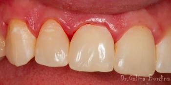 Реставрация зубов 12, 11 по 3 классу и восстановление длины зуба 21 фото после лечения