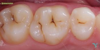 Лечение фисурного кариеса силиконовым ключом фото до лечения